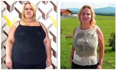 before and after - results else money back